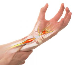 Last van de spieren